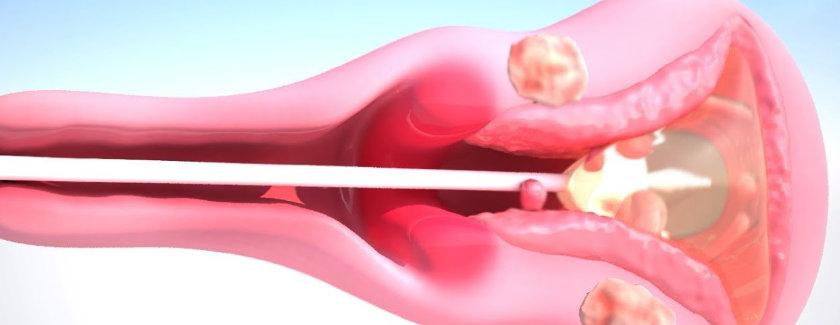 ¿Qué es una ablación endometrial?
