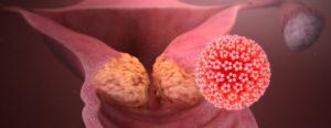 Qué es el Virus del Papiloma Humano VPH